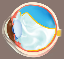 Retinal tear and detachment