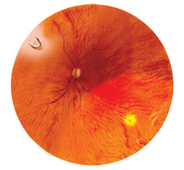 Peripheral retinal degeneration and retinal tear